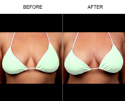 Non-Invasive Breast Enhancement Before And After