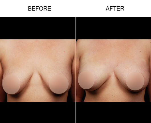 Non-Invasive Breast Enhancement Results