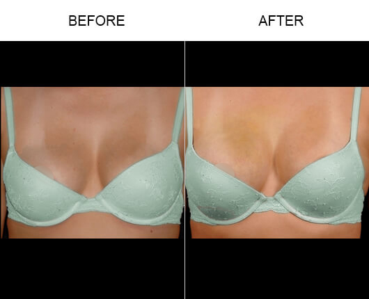Natural Breast Enlargement Results