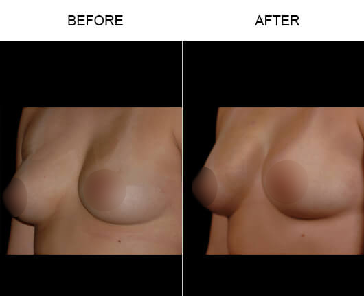 NaturalFill® Breast Enlargement Before And After