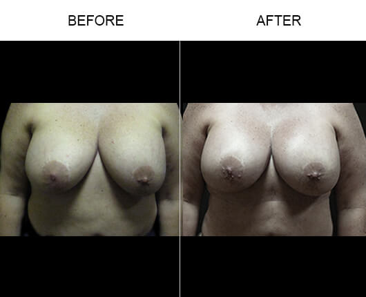 Breast Enhancement Before And After