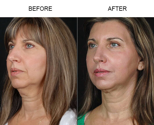 Before and after photos of a patient who had the LazerLift™ procedure in Orlando