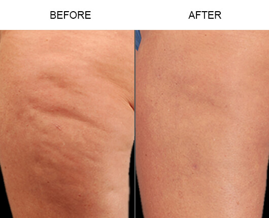 Cellulaze™ Cellulite Treatment Florida Before and After
