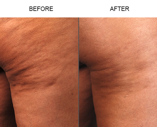 Cellulaze™ Cellulite Treatment Orlando Before and After