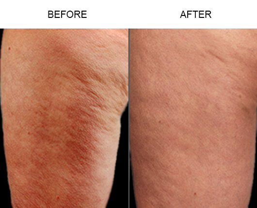Cellulaze™ Florida Before and After