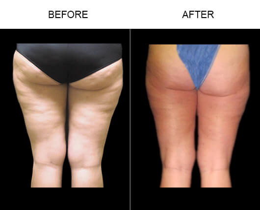 Cellulaze™ Orlando Before and After