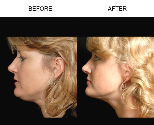 Before and after photos of a patient who had LazerLift™ in Orlando, Florida