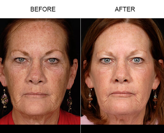 Non Surgical Face Lift Orlando Before and After