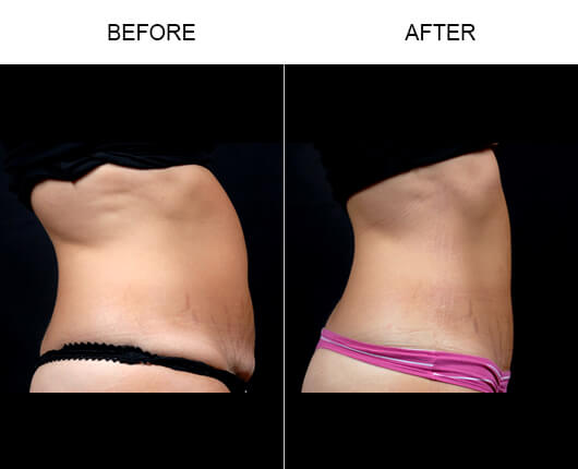 Mini Tummy Tuck Results