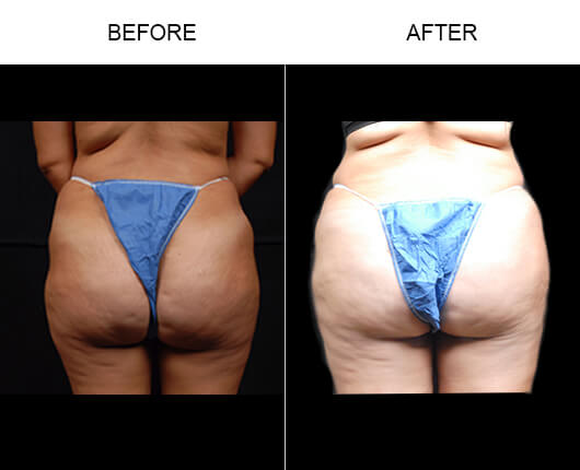Buttocks Enhancement Before And After