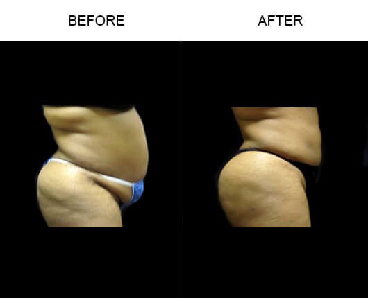 Buttocks Enhancement Results