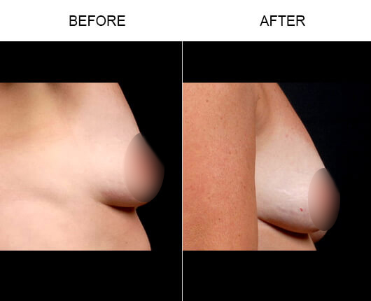 NaturalFill® Breast Enlargement Results