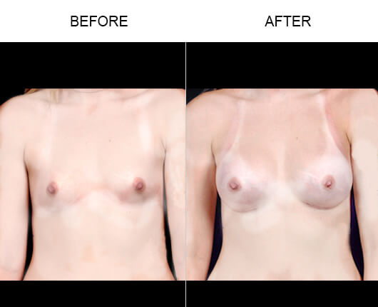 Breast Enhancement Surgery Before And After