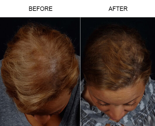 NeoGraft® Orlando Before and After