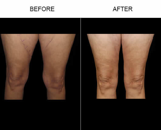 Water Lipo Florida Before and After