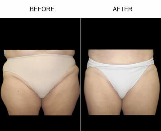Florida Water Liposuction Before and After