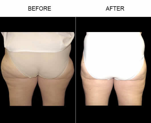 Orlando Water Liposuction Before and After