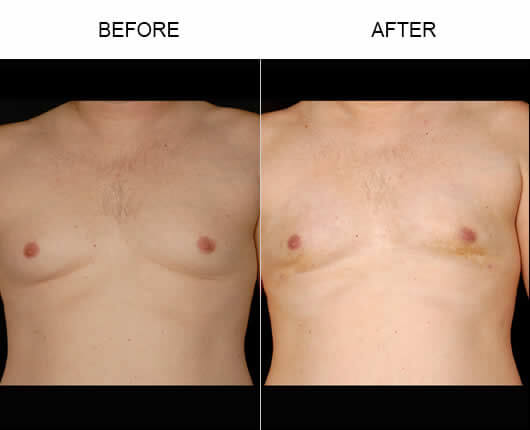 Water Liposuction Orlando Before and After