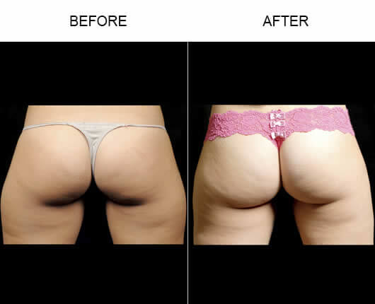Water Lipo Orlando Before and After