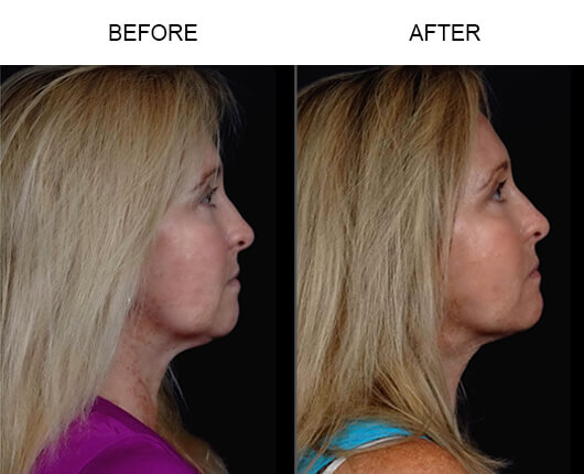 Laser Facelift Procedure Before And After