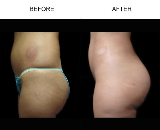 Naturalfill® Buttocks Enhancement Before And After