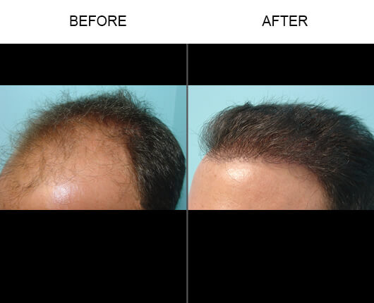 Hair Transplant Orlando Before and After