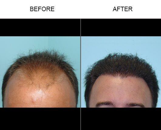 Hair Transplant Florida Before and After