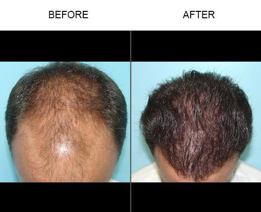 Hair Restoration Florida Before and After
