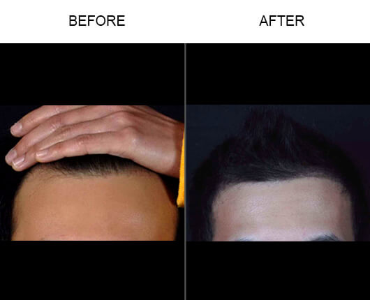 Hair Restoration Orlando Before and After