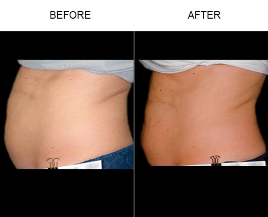 Liposonix® Contouring Treatment Results