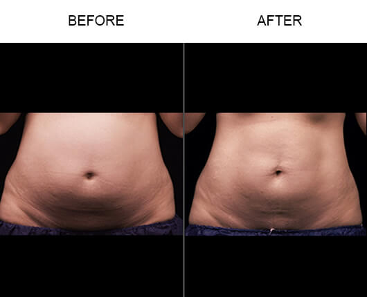 Liposonix® Treatment Before And After