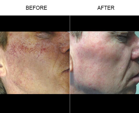 Vein Removal Before And After