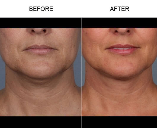 Kybella™ Before And After