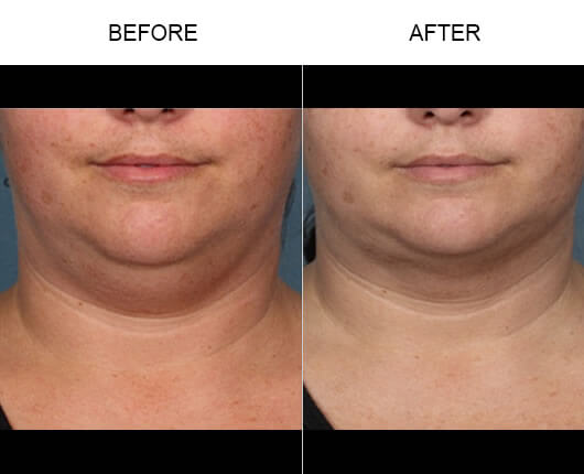 Kybella™ Injections Before And After