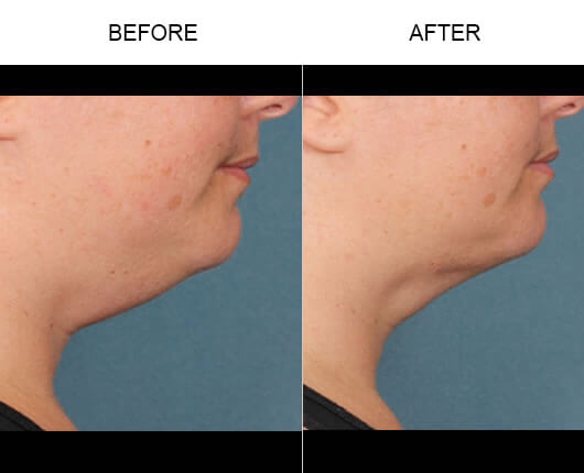 Kybella™ Injections Results