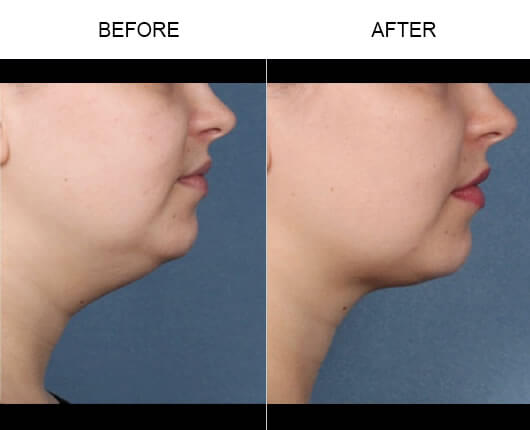 Double Chin Treatment Results