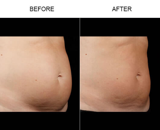 SculpSure™ Treatment Before And After