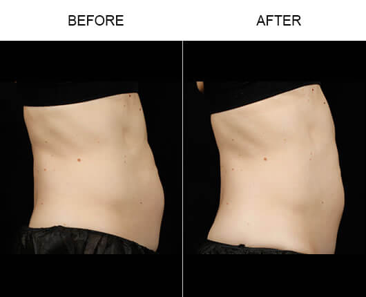 Laser Fat Removal Before And After