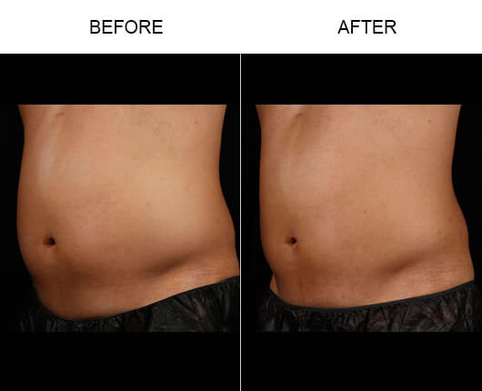 Laser Fat Removal Results