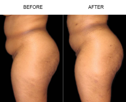 Natural Buttocks Enhancement Results Before And After