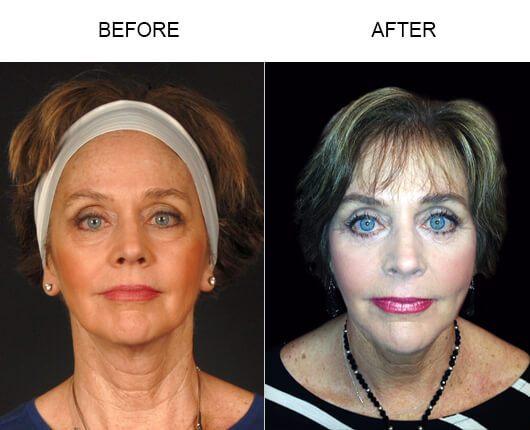 Before and after photos of Welcome Home host Barbara Beck who had LazerLift™