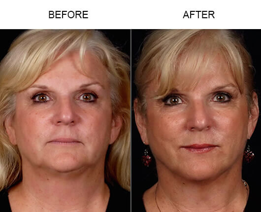 Before and after photos of a patient who had LazerLift™ in Orlando