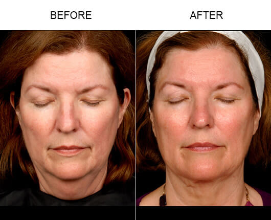 Before and after photos of a female patient who had the LazerLift™ procedure in Orlando