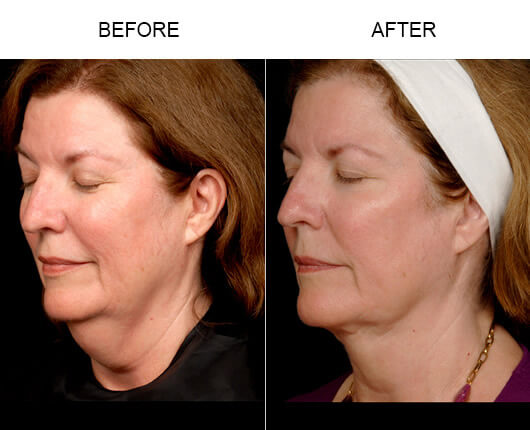 Before and after photos of a female patient who had the LazerLift™ procedure in Orlando.