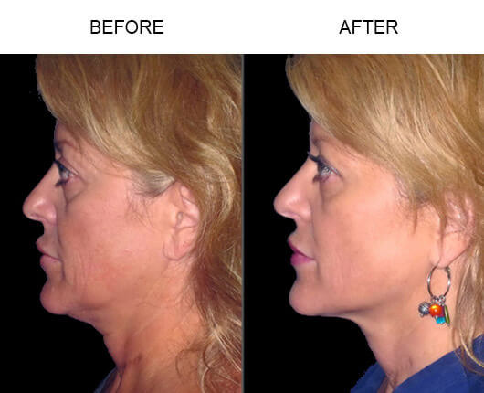 Before and after photos of a patient who had the LazerLift™ procedure in Florida