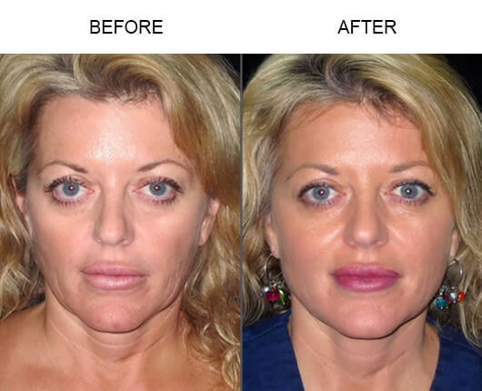 Before and after photos of a patient who had the LazerLift™ procedure in Orlando, Florida