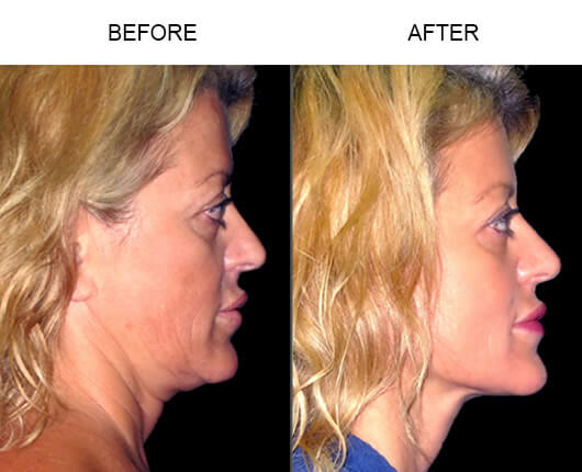 LazerLift® Procedure Before And After