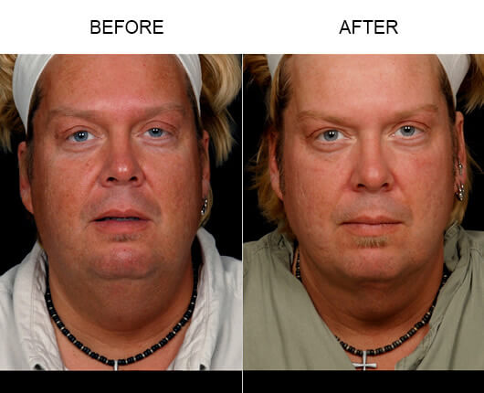 Before and after photos of a male patient who had the LazerLift™ procedure in Orlando, FL.
