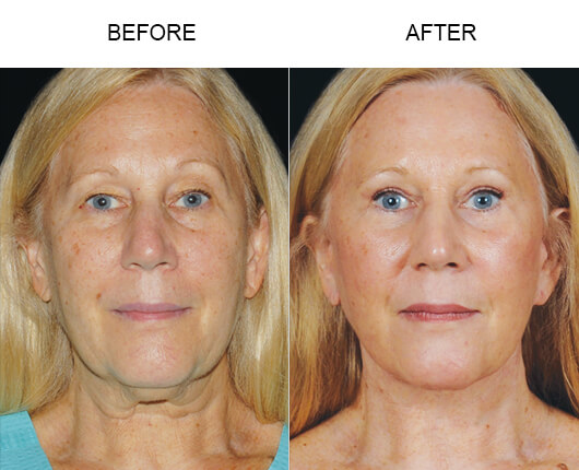 Mini Facelift Surgery Before And After