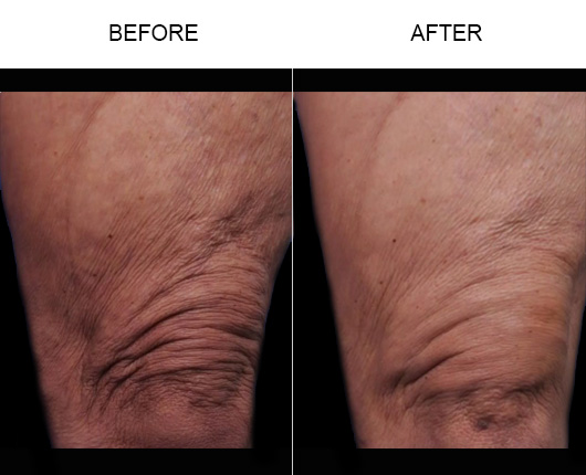thermitight® Before and After